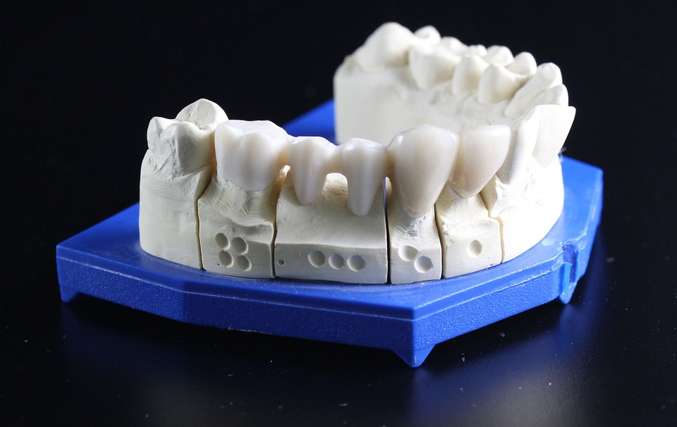 tooth-replacement-759928_960_720[1]