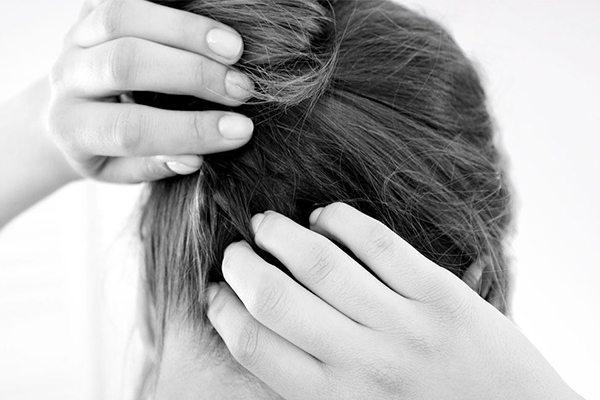 Inilah 5 Cara Menghilangkan Kutu Rambut yang Menjengkelkan!