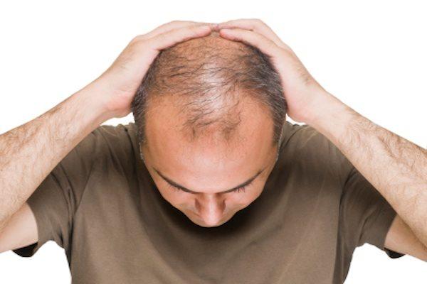 begini lho 7 cara cepat menumbuhkan rambut, cobain yuk! Cara Mengoleskan Minyak Kemiri Pada Rambut