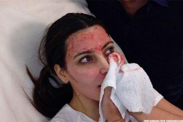 facial darah