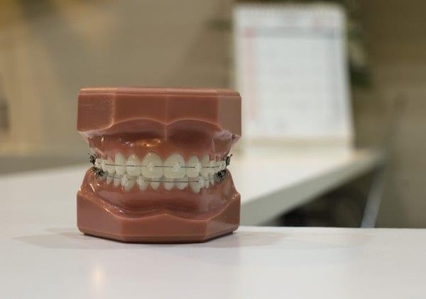 arti mimpi gigi copot