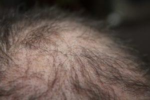 Pemicu kerontokan rambut karena perubahan dalam tubuh