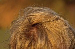 Melancarkan Sirkulasi Darah pada Kulit Kepala