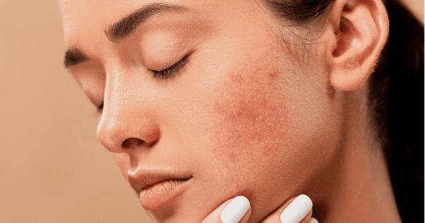 berhenti menggunakan skincare