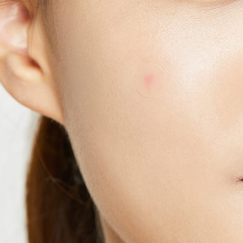pimple patch on women's face